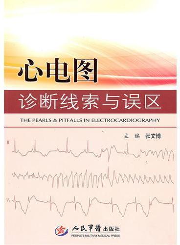 心电图诊断线索与误区