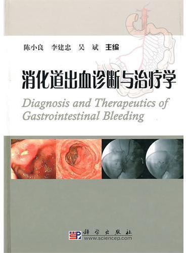 消化道出血诊断与治疗学