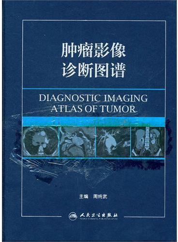 肿瘤影像诊断图谱