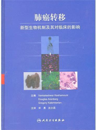 肺癌转移(翻译版)