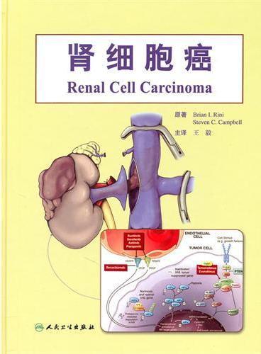 肾细胞癌(翻译版)