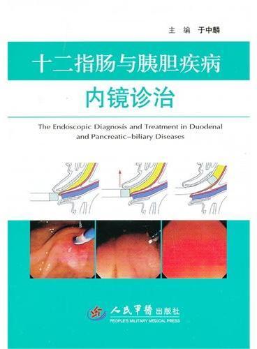 十二指肠与胰胆疾病内镜诊治