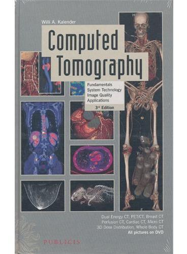 Computed Tomography 3E - Fundamentals, System Technology, Image Quality, Applications(ISBN=9783895783173)