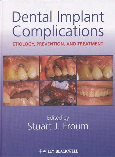 Dental Implant Complications(ISBN=9780813808413)