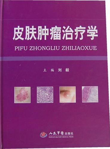 皮肤肿瘤治疗学