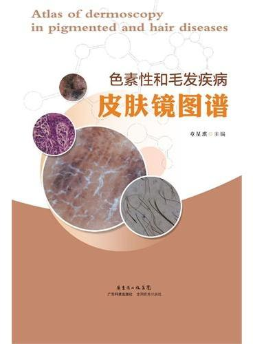 色素性和毛发疾病皮肤镜图谱