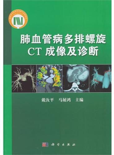 肺血管病多排螺旋CT成像及诊断