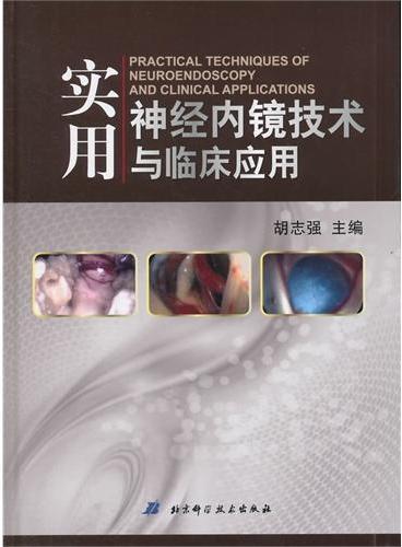 实用神经内镜技术与临床应用