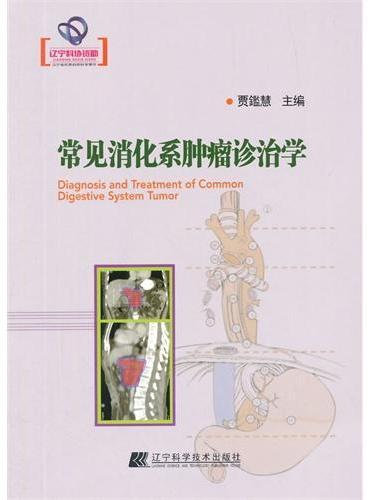 常见消化系肿瘤诊治学