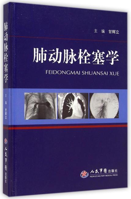 肺动脉栓塞学