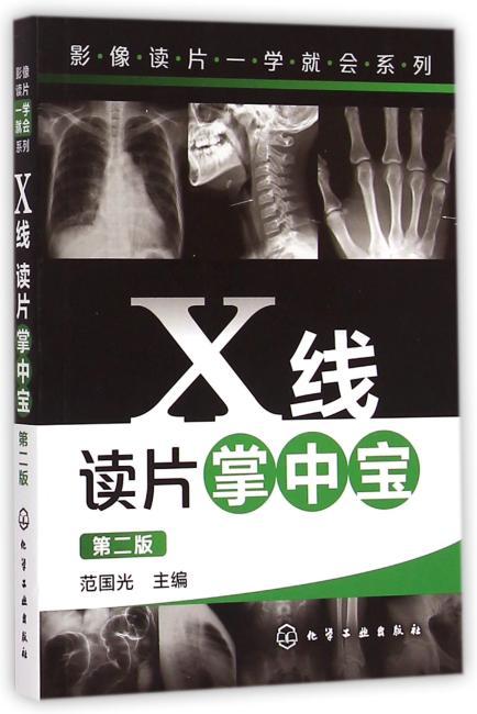 X线读片掌中宝(第二版)