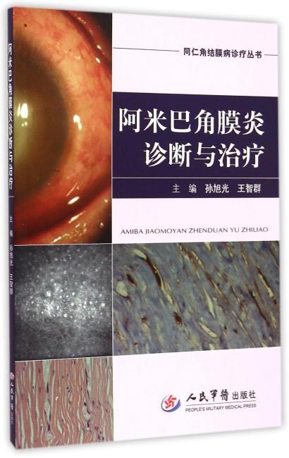阿米巴角膜炎诊断与治疗.同仁角结膜病诊疗丛书