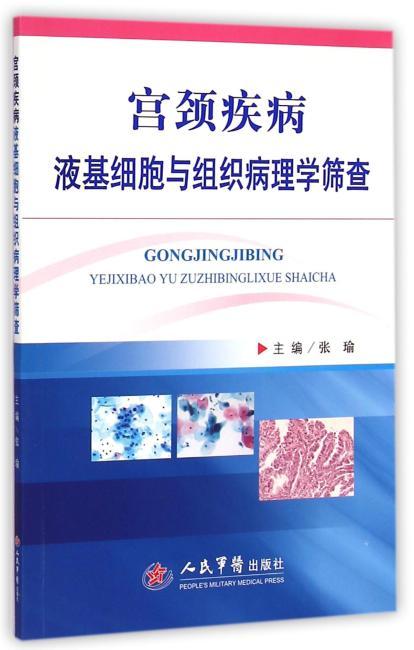 宫颈疾病液基细胞与组织病理学筛查