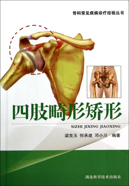 四肢畸形矫形
