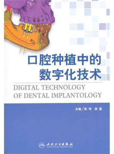 口腔种植中的数字化技术