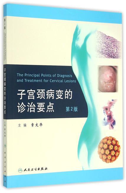 子宫颈病变的诊治要点(第2版)