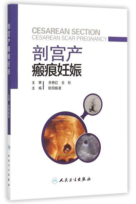 剖宫产瘢痕妊娠
