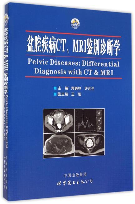 盆腔疾病CT、MRI鉴别诊断学