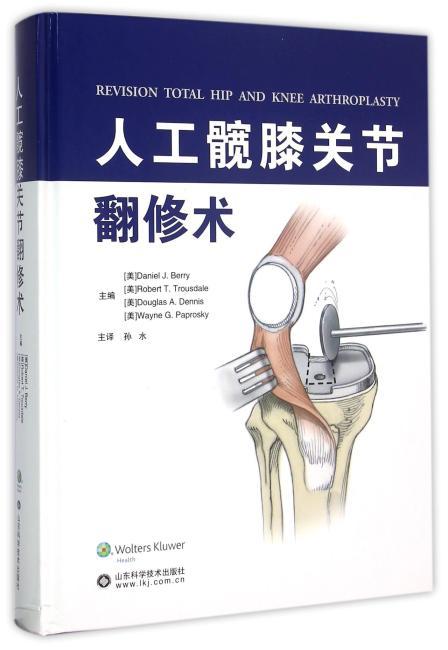 人工髋膝关节翻修术