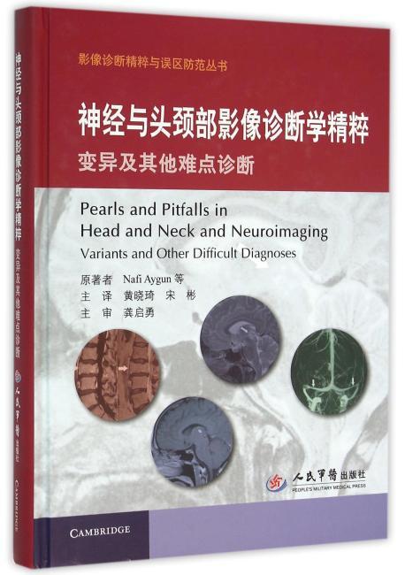 神经与头颈部影像诊断学精粹 变异及其他难点诊断.影像诊断精粹与误区防范丛书
