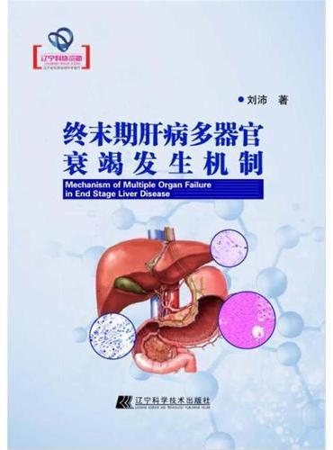 终末期肝病多器官衰竭发生机制