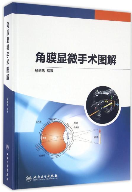 角膜显微手术图解