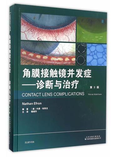 角膜接触镜并发症——诊断与治疗