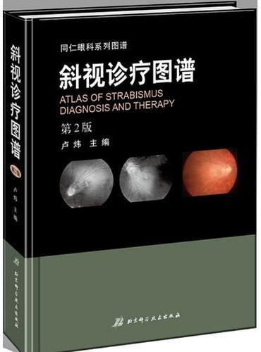 斜视诊疗图谱(第2版)
