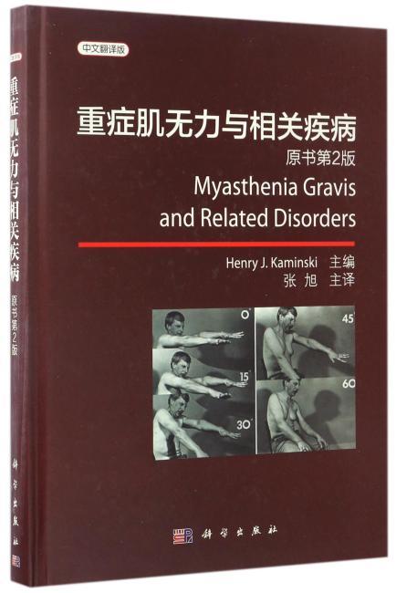 重症肌无力与相关疾病