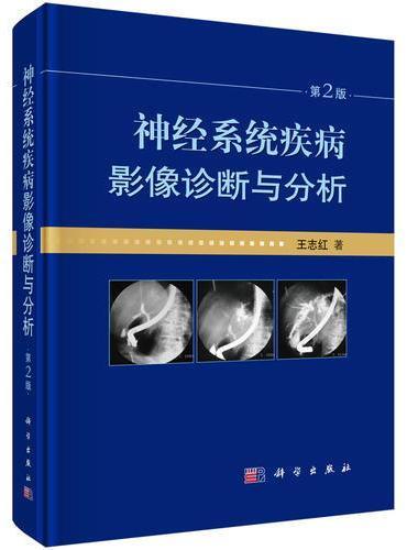 神经系统疾病影像诊断与分析(第2版)