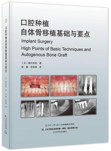 口腔种植自体骨移植基础与要点