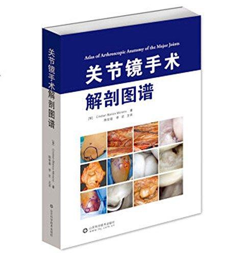 关节镜手术解剖图谱