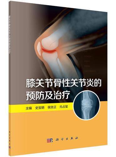 膝关节骨性关节炎的预防及治疗