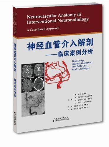 神经血管介入解剖—临床案例分析