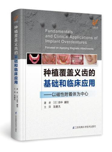 种植覆盖义齿的基础和临床应用------以磁性附着体为中心(精)